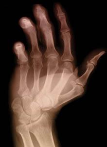 Artrite reumatoide, l'ecografia riduce il rischio di ricadute del 50%