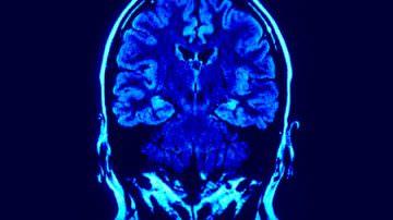 Salute, presentata la Consulta delle malattie neuromuscolari