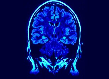 Alzheimer: Pet e test della memoria episodica, ecco i due esami migliori