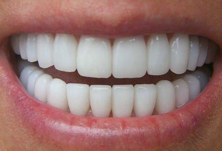 Le sostanze alcaline danneggiano i denti
