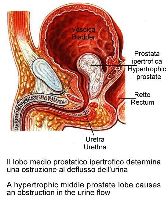 omega 3 y próstata