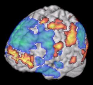 Una proteina anti artrite reumatoide contrasta l'Alzheimer