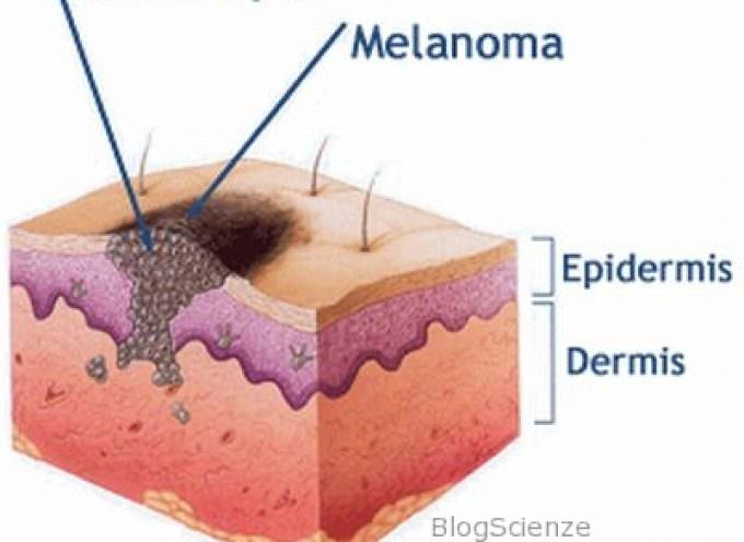 Melanoma, individuate le cellule zero