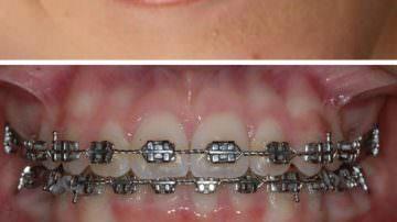 Ortodonzia ed estetica del sorriso: