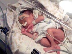 Torino: ecco la proteina salva vita per i neonati sottopeso