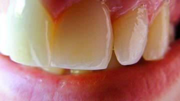 Prolina: l'aminoacido che protegge i denti