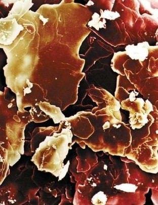 L'ossicolesterolo combatte il morbo di Parkinson