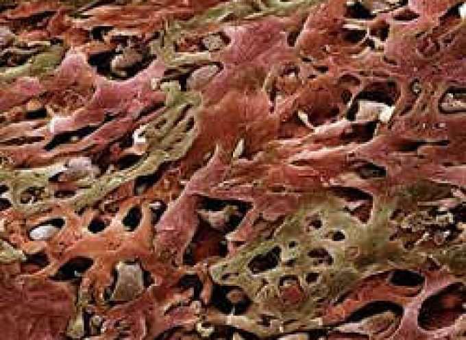 Un esame del sangue: così si scopre in anticipo il cancro al polmoni