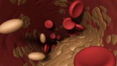 Semi di lino contro il colesterolo