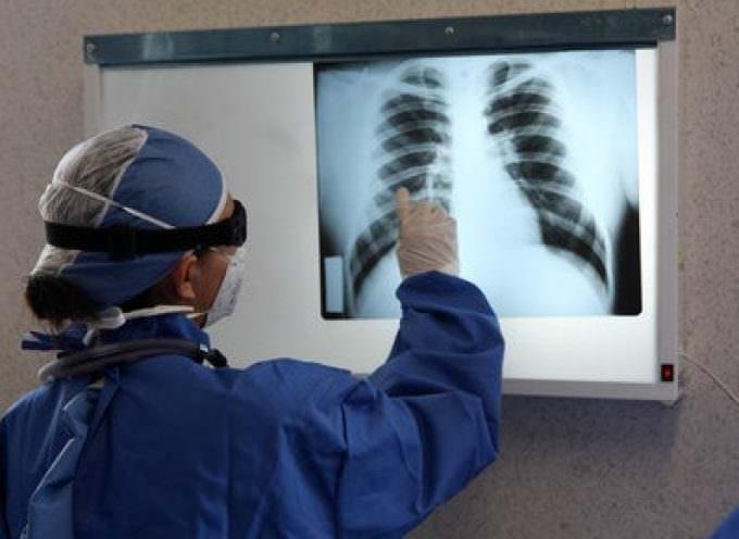 Influenza A, il virus attacca i polmoni in profondità