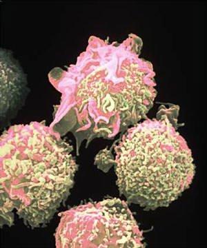 Leucemia: in Italia si cura senza chemioterapia