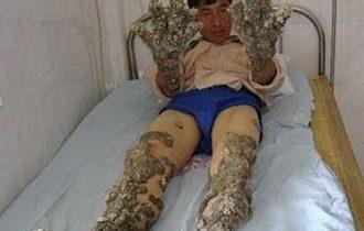 Cina: ecco Lin Tianzhuan, l'uomo scoglio