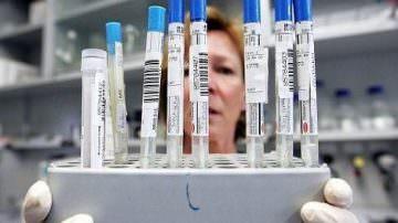Influenza A. Il virus mutato è arrivato in Italia