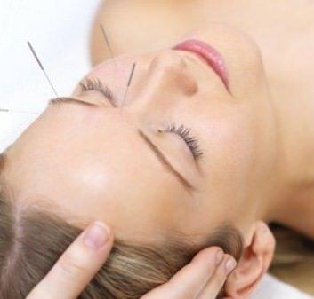 L'agopuntura combatte i dolori della gravidanza