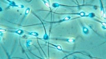 Fertilità maschile, in vent'anni calo del 50%