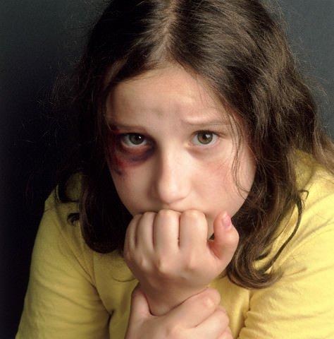 Bambini: le violenze fisiche favoriscono il cancro e l'invecchiamento precoce