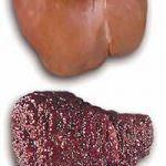 Epatite B: una proteina anomala favorisce l'infezione