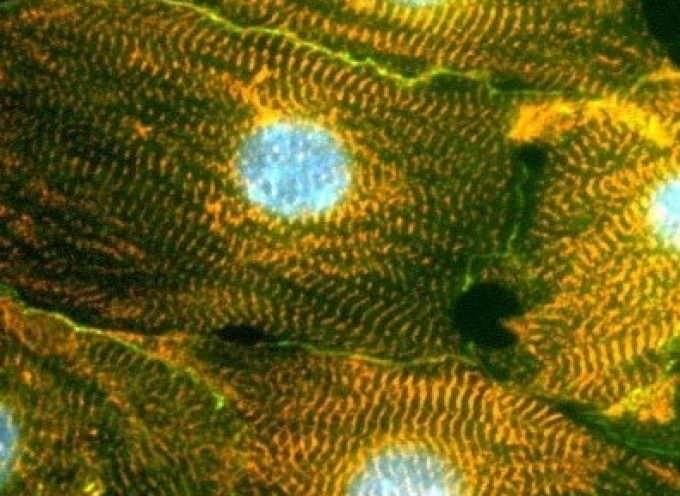 Cellule staminali per fermare la distrofia muscolare di Duchenne
