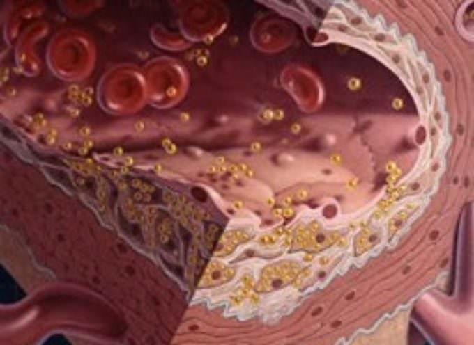 Ecco Mgmin-LDL il colesterolo ultra-cattivo. A rischio diabetici ed anziani
