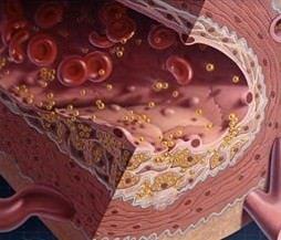 """Scoperto un altro colesterolo """"cattivo"""" per il cuore"""