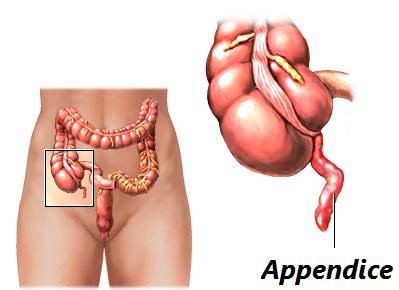 L'appendicite è causata da un virus