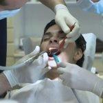 Addio trapano del dentista. Contro le carie, un getto di plasma