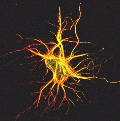 Wnt5a: una proteina per corea di Huntington ed epilessia