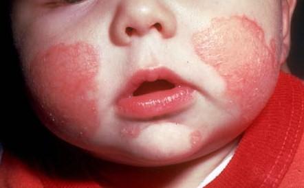 Minerali e vitamina E contro l'eczema nei bambini