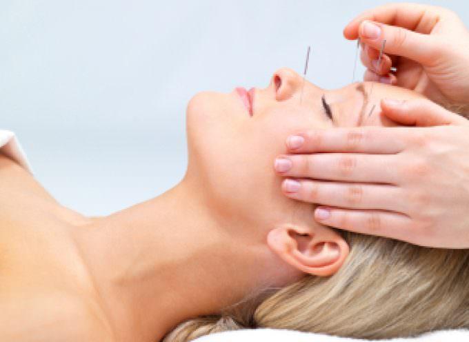 Agopuntura: meno dolore, cervello rilassato