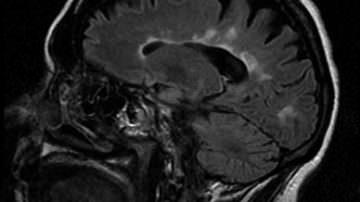 Cervello: anticorpi naturali lo proteggono dall'ictus