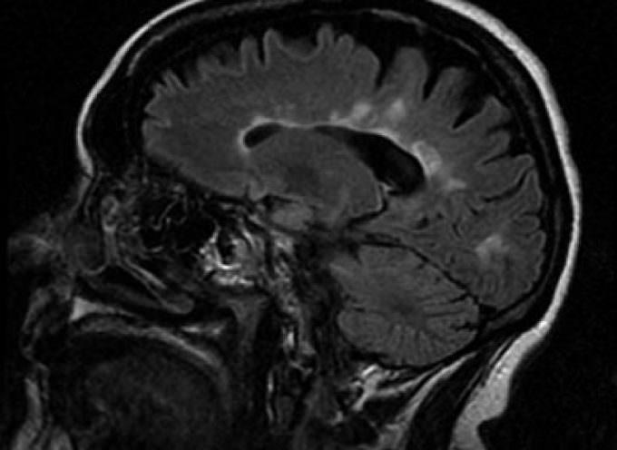 Autismo: un software speciale per una diagnosi in 10 minuti