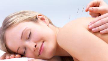 L'agopuntura: inutile contro la sterilità delle donne