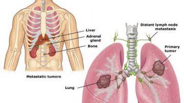La vitamina B dimezza il rischio di cancro ai polmoni