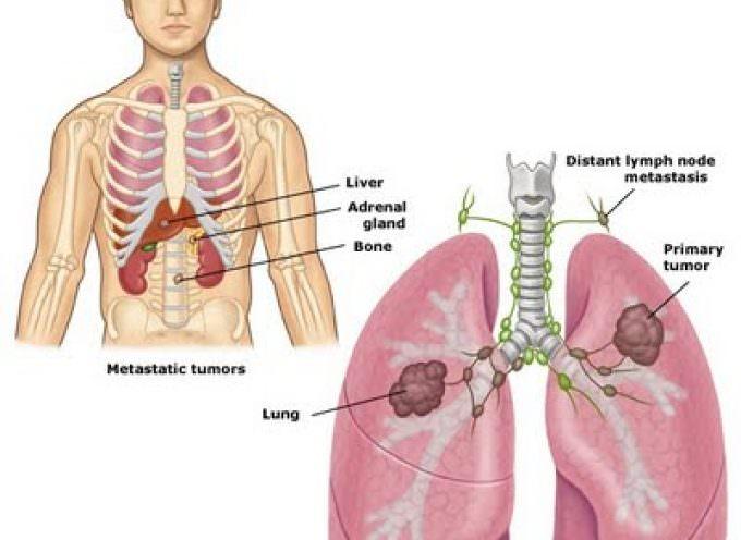 Un gene rende vulnerabili al cancro ai polmoni anche i non fumatori