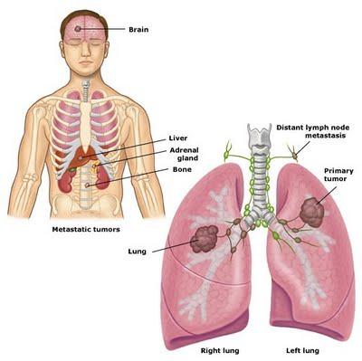 Tumore ai polmoni: i fumatori hanno un rischio 60 volte superiore