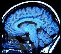 Sclerosi Multipla e CCSVI. Parla il professor Zamboni