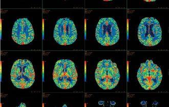 Alzheimer, speranze dall'alimentazione
