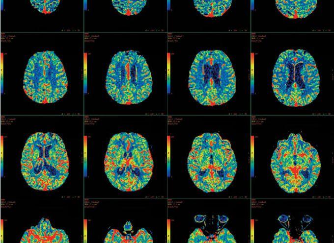 Alzheimer: nel cervello i segni precoci della malattia