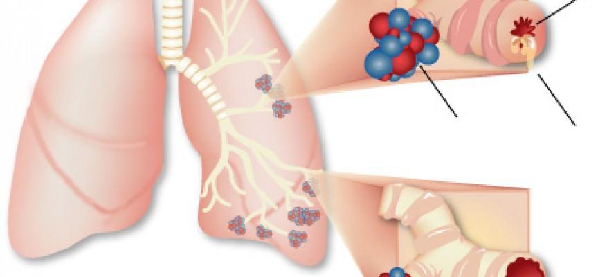Cellule staminali per curare l'asma