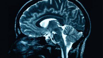 Un esame del sangue per scoprire la sclerosi multipla con 9 anni d'anticipo