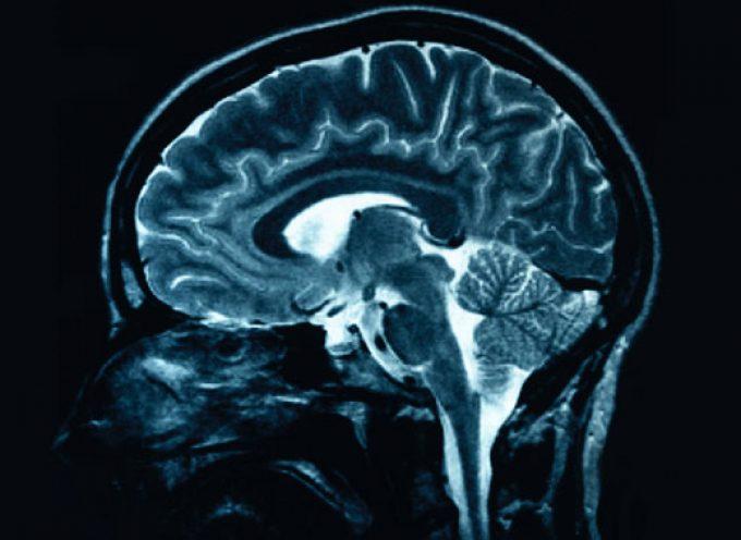 Cervello: un'iniezione di cellule staminali per riparare i danni da ictus