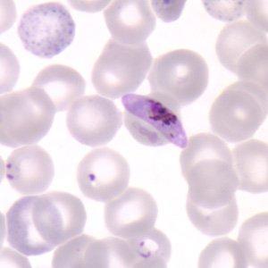 Antica come l'uomo. La malaria ha 80.000 anni