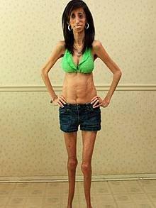 Lizzie Velasquez, la ragazza da 60 pasti al giorno