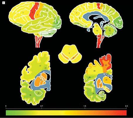 Diabete: una serie di geni favoriscono l'ictus ischemico