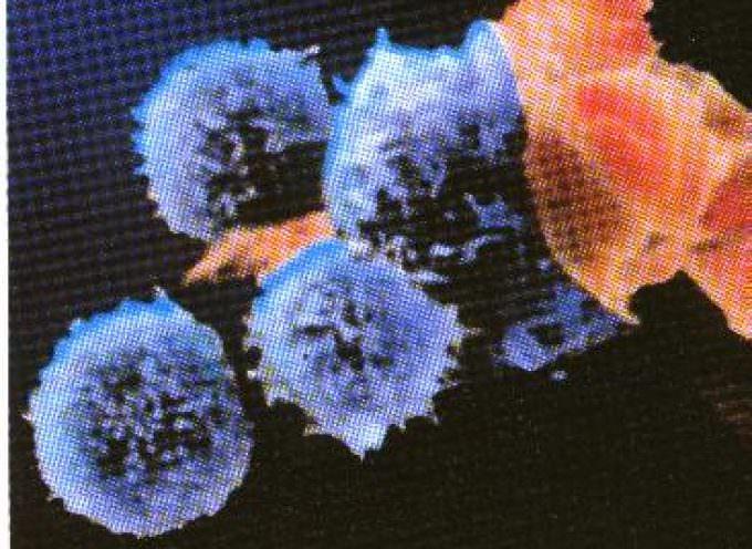 AIDS, due anticorpi eliminano il 90% dei ceppi del virus