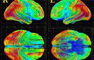 Osservare il midollo spinale per predire l'arrivo dell'Alzheimer