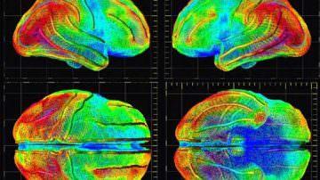 Una nuova terapia contro l'encefalopatia etilmalonica