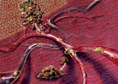Semaforina, la proteina che blocca le metastasi