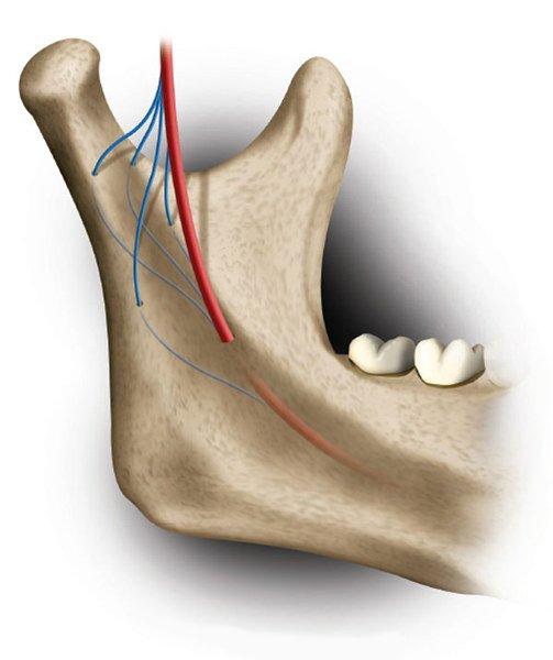 Nella polpa dei denti del giudizio una nuova fonte di cellule staminali