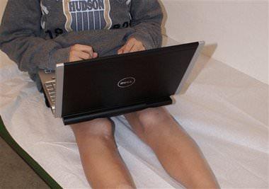Tieni il computer sulle gambe nude? Attento alla sindrome da tostapane